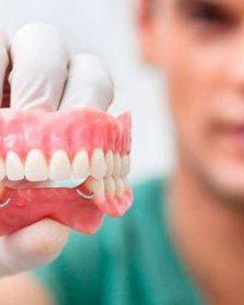 Рейтинг ТОП 7 лучших зубных протезов